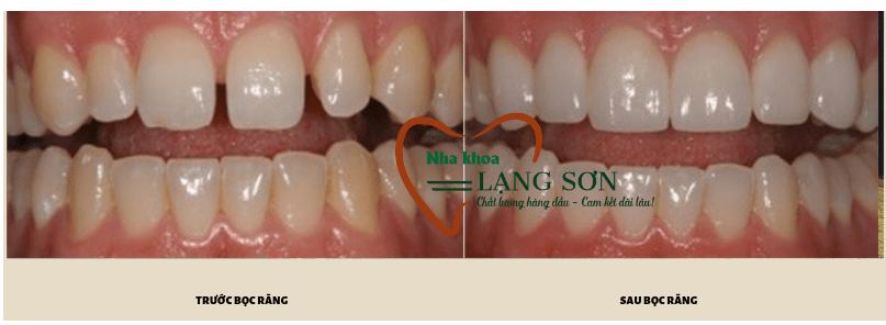 Photo of Bọc răng sứ thẩm mỹ  tại Lạng Sơn