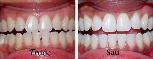 Photo of Tẩy trắng răng tại Lạng Sơn uy tín nhất