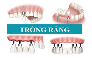 Photo of Mất răng nên trồng răng sứ hay cấy ghép Implant