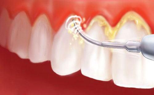 Photo of Lấy cao răng tại Lạng Sơn áp dụng công nghệ cao